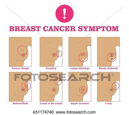 صورة اعراض سرطان الثدي عند الفتيات بالصور , سرطان الثدي و اعراضه