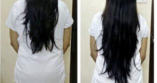 حقن بيوتين وبيبانثين للشعر , فيتامينات حقن الشعر