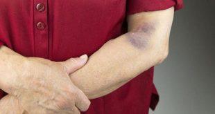صور علاج الصفائح الدموية , التخلص وزياده الصفائح الدمويه