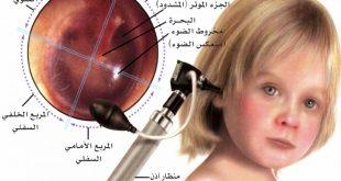 علاج التهاب الاذن الوسطى عند الاطفال , افضل الطرق لتخفيف وعلاج التهابات الاذن الوسطى والاضطرابات