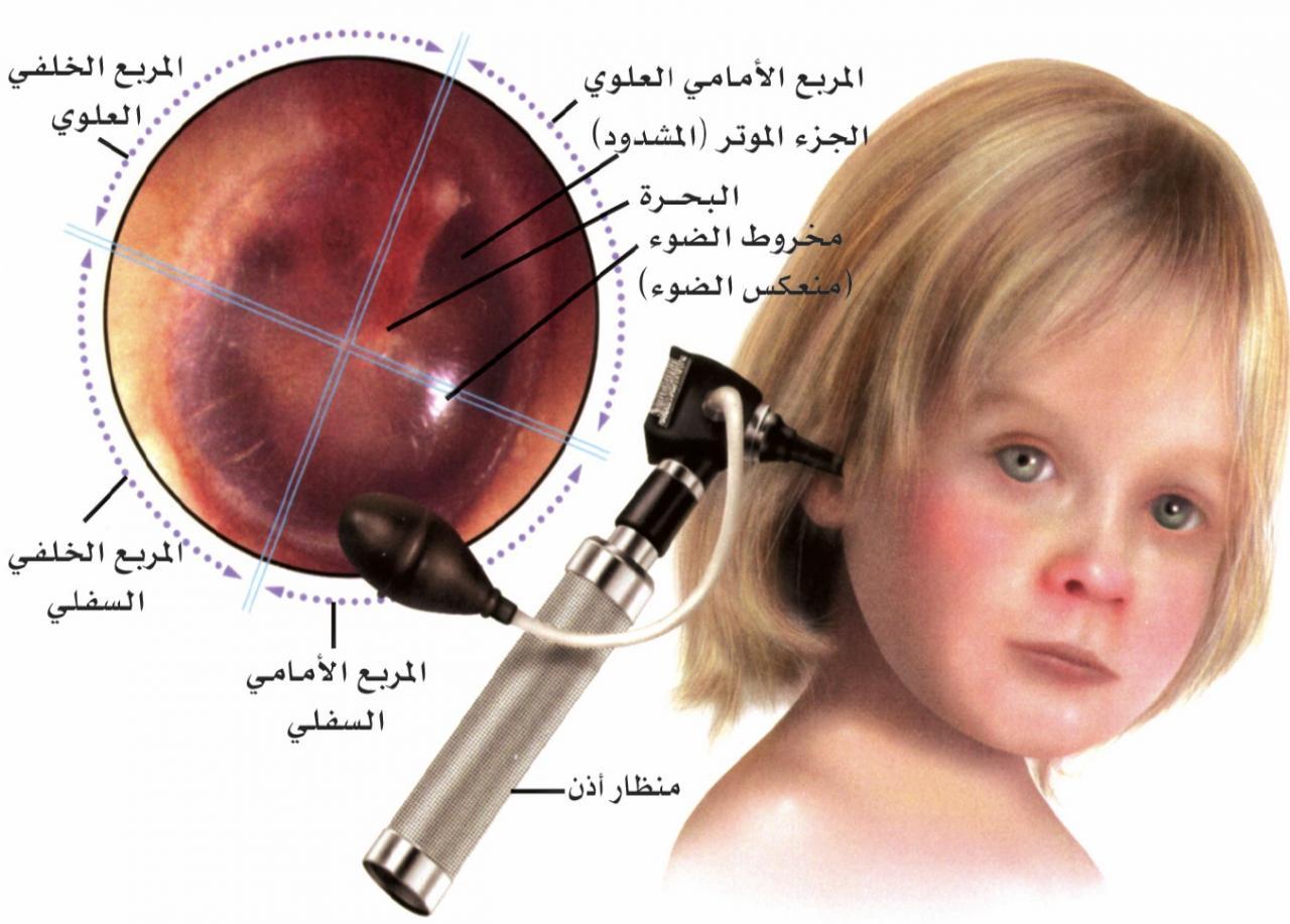صورة علاج التهاب الاذن الوسطى عند الاطفال , افضل الطرق لتخفيف وعلاج التهابات الاذن الوسطى والاضطرابات