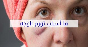 سبب انتفاخ الوجه , تعرف على اهم الامراض التي تسبب تورم في الوجه