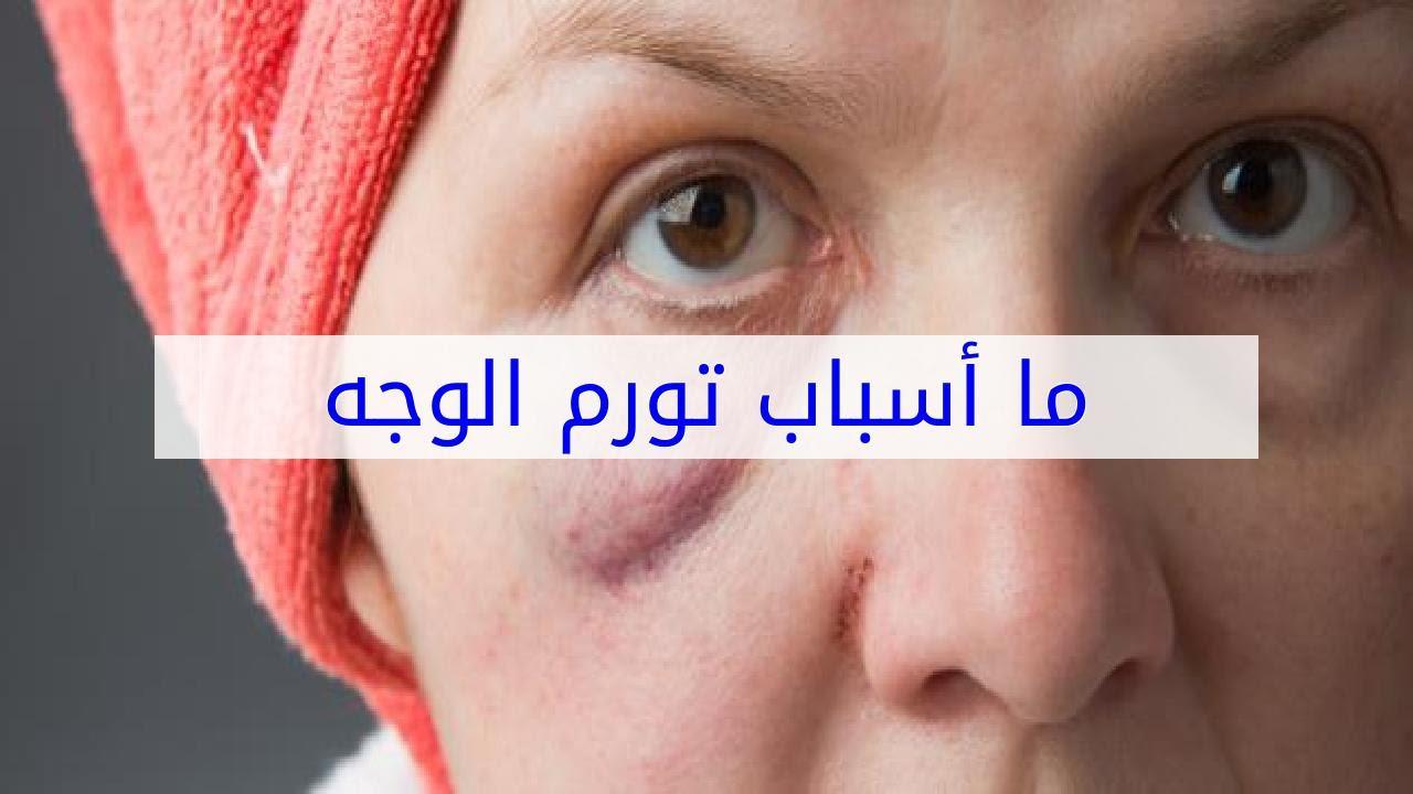 صور سبب انتفاخ الوجه , تعرف على اهم الامراض التي تسبب تورم في الوجه