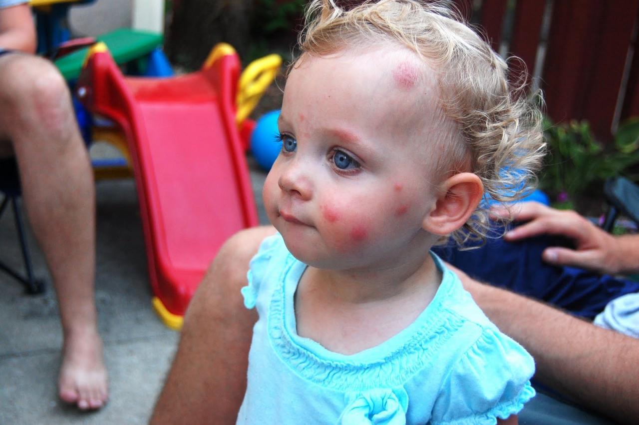 صورة كريم لقرص الناموس للاطفال , افضل كريم قرص الناموس وفوائده