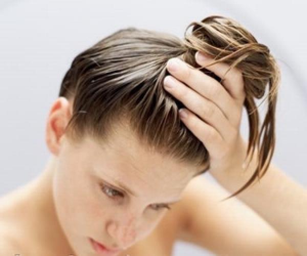 صورة زيت الخروع للشعر الخفيف من الامام , اعيدي انبات الشعر في مقدمة راسك بزيت الخروع السحري