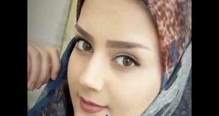 صور عمليات تجميل الانف في ايران , اروع العمليات التجميلية فى ايران