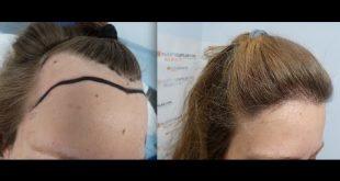 صورة زراعة الشعر للنساء , ابسط الطرق لزراعة الشعر
