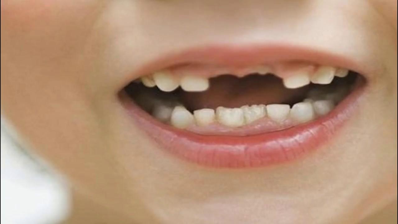 صور تفسير تكسر الاسنان , انا مرعوبة اسناني اتكسرت في منامي لا داعي للرعب فهذا تفسير الحلم
