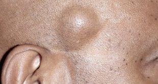 بالصور علاج الاكياس الدهنية في الوجه بالاعشاب , ابسط الطرق المناسبة للعلاج الاكياس الدهنية 105 2 310x165