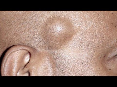 صورة علاج الاكياس الدهنية في الوجه بالاعشاب , ابسط الطرق المناسبة للعلاج الاكياس الدهنية