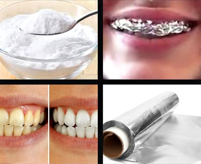 صور تبييض الاسنان المنزلي , الوصفه الجباره لاسنان ناصعه البياض