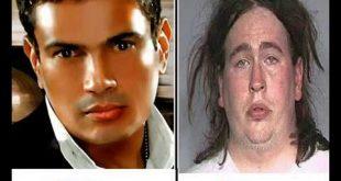 صورة المشاهير قبل وبعد عمليات التجميل , اجمل المشاهير قبل العملية التجميل بعدها
