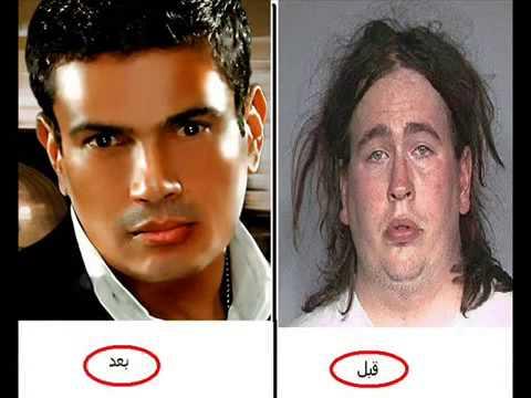 صور المشاهير قبل وبعد عمليات التجميل , اجمل المشاهير قبل العملية التجميل بعدها