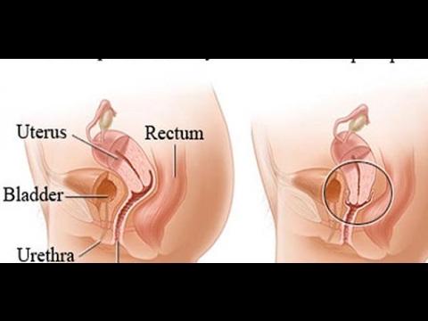 بالصور عملية رفع الرحم وتضييق المهبل , ابسط العمليات لرفع الرحم 199 1