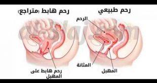 صورة عملية رفع الرحم وتضييق المهبل , ابسط العمليات لرفع الرحم