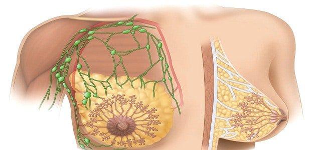 صور الم الثدي من اعراض الحمل , سبب الام الثدي اثناء الحمل