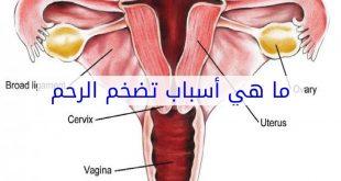صور اسباب تضخم الرحم , سبب تمدد الرحم