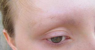 بالصور تساقط شعر الحواجب , سبب سقوط شعر الحواجب 2265 12 310x165
