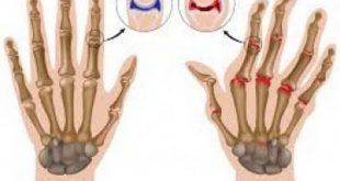 صور اسباب الم مفاصل اصابع اليد , ما هو سبب الم مفاصل الصوابع
