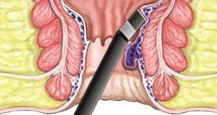 صور اعراض البواسير الداخلية , البواسير الداخليه واعراضها