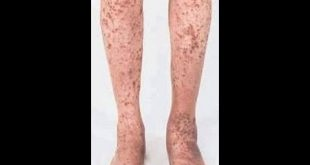 صور اسباب نقص الصفائح الدموية , علاج نقص الصفائح الدموية