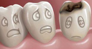 صور اضرار تسوس الاسنان على الجسم , اهمال الاسنان يؤدي الى التسوس وتعرف على بعض الاضرار التى قد تحدث لك