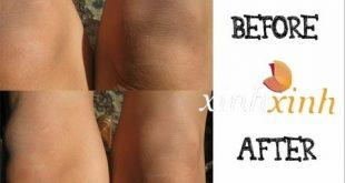 صورة وصفة لتبييض الركبتين , ابسط الوصفات للتبيض