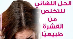 بالصور التخلص من القشره , الحفاظ علي الشعر من القشره unnamed file 163 310x165