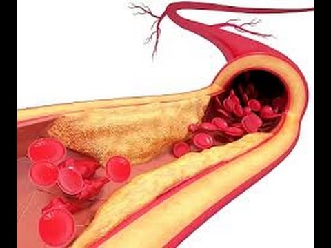 صور علاج الدهون والكلسترول وتصلب الشرايين خلال اسبوعين , احسن الوصفات التى تعمل على تفتيت الدهون ووخفض مستوى الكوليسترول فى الدم