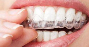 صور قوالب تبييض الاسنان , طريقة تبييض الاسنان بالقوالب