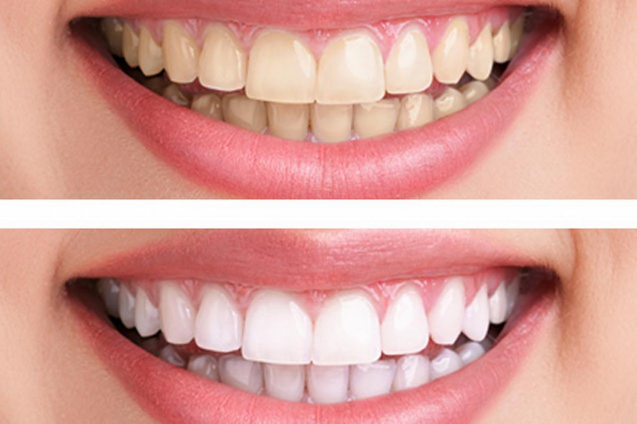 صور تبييض الاسنان بالليزر , بياض ناصع للاسنان بالليزر
