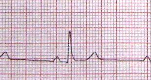 صورة انخفاض نبض القلب , لماذا يحدث اضرابات فى نبض القلب