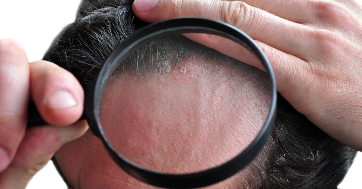صورة اسباب ظهور حبوب في فروة الراس , لماذا يظهر حبوب فى فروه الراس 2848