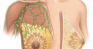 صور اسباب الام حلمة الثدي , مشاكل الثدى والعلاج السريع منها