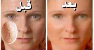 علاج قشور الوجه , التخلص من قشور الوجه بخلطه طبيعيه