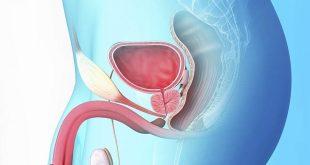 صورة اعراض مرض البروستات عند الرجال , ما هى البروستات التى تاتى للرجال