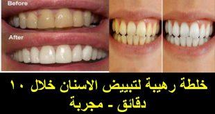 صور علاج تبييض الاسنان , افضل واحسن الطرق لتبييض الاسنان