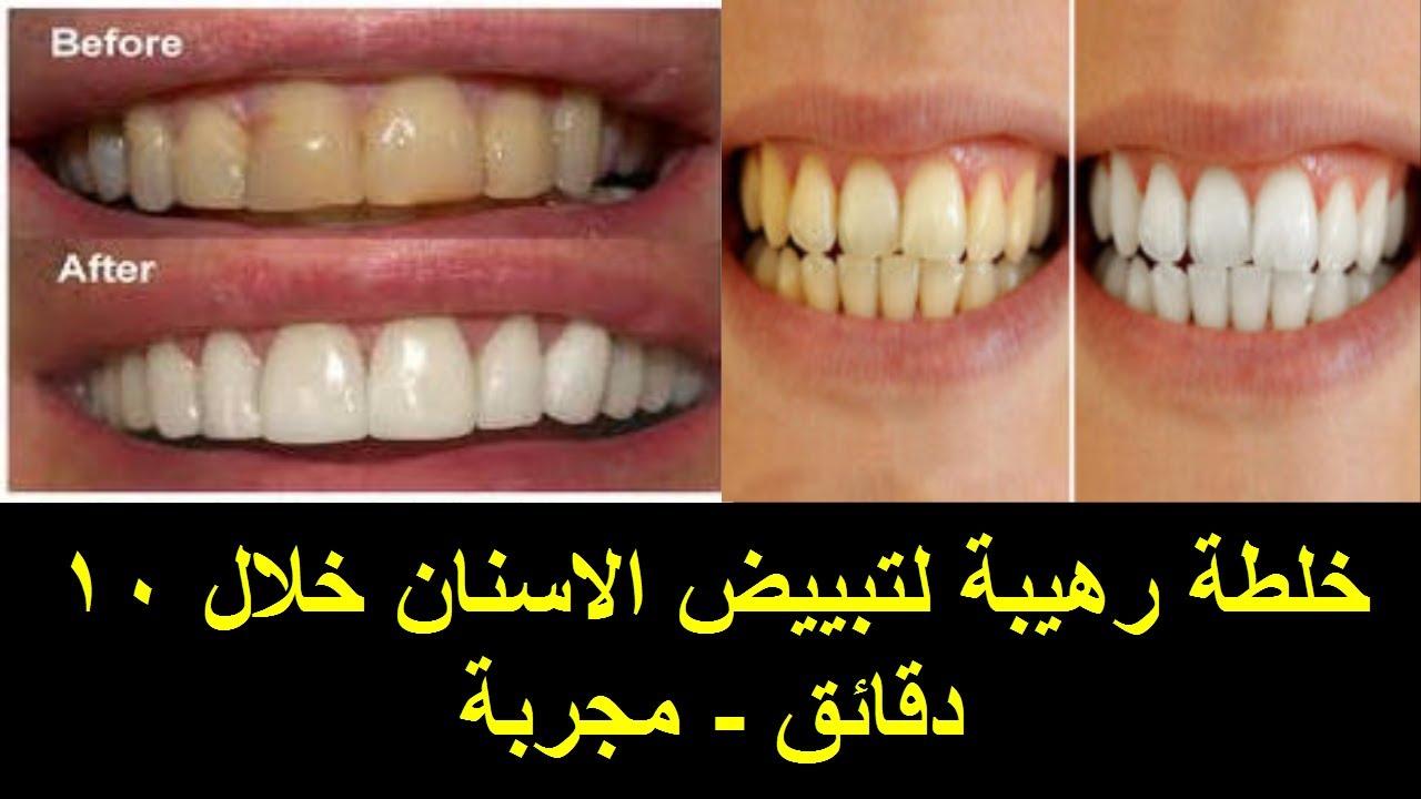 صورة علاج تبييض الاسنان , افضل واحسن الطرق لتبييض الاسنان