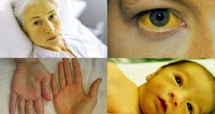 صور اصفرار الوجه عند الاطفال , اصفرار وجه الطفل وما هو سببه