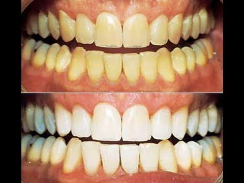 صور علاج اصفرار الاسنان , طريقة القضاء على اصفرار الاسنان تماما