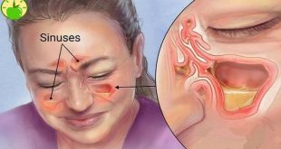 صور اعراض الجيوب الانفيه بالتفصيل , ما هيا مضاعفات الاصابه بالجيوب الانفيه