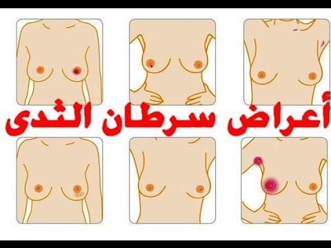 صورة اعراض واسباب سرطان الثدي , اكتشفى بنفسك اسباب سرطان الثدى