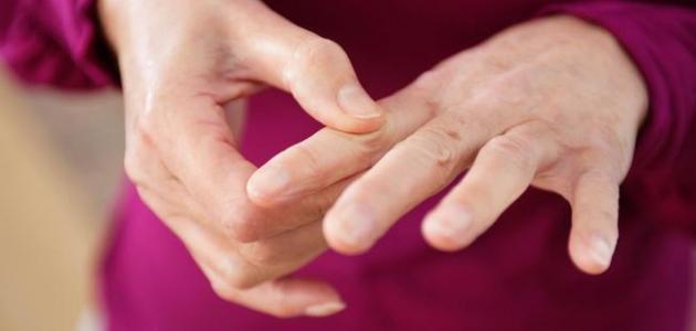 صور علاج مرض الروماتيزم بالاعشاب , الان تخلص من كابوس الروماتيزم نهائيا