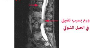 صور اعراض سرطان النخاع الشوكي , الام ورم النخاع الشوكي