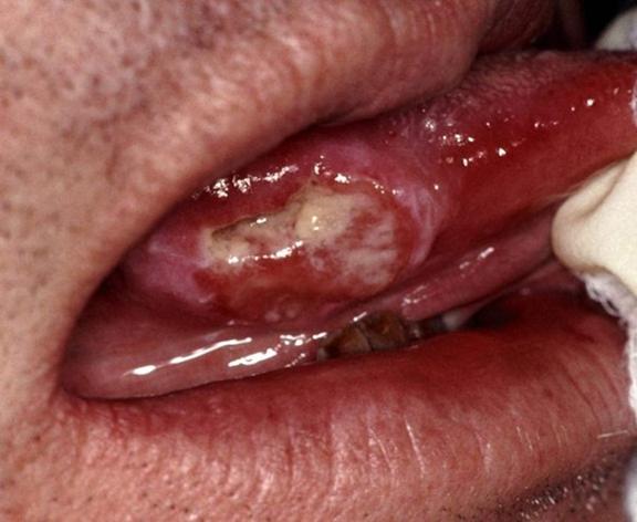 صورة اعراض سرطان الفم بالصور , تعرف على سرطان الفم بالتفصيل