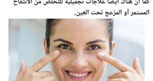 صورة علاج تورم تحت العين , ما هو اسباب وعلاج الانتفاخات تحت العين