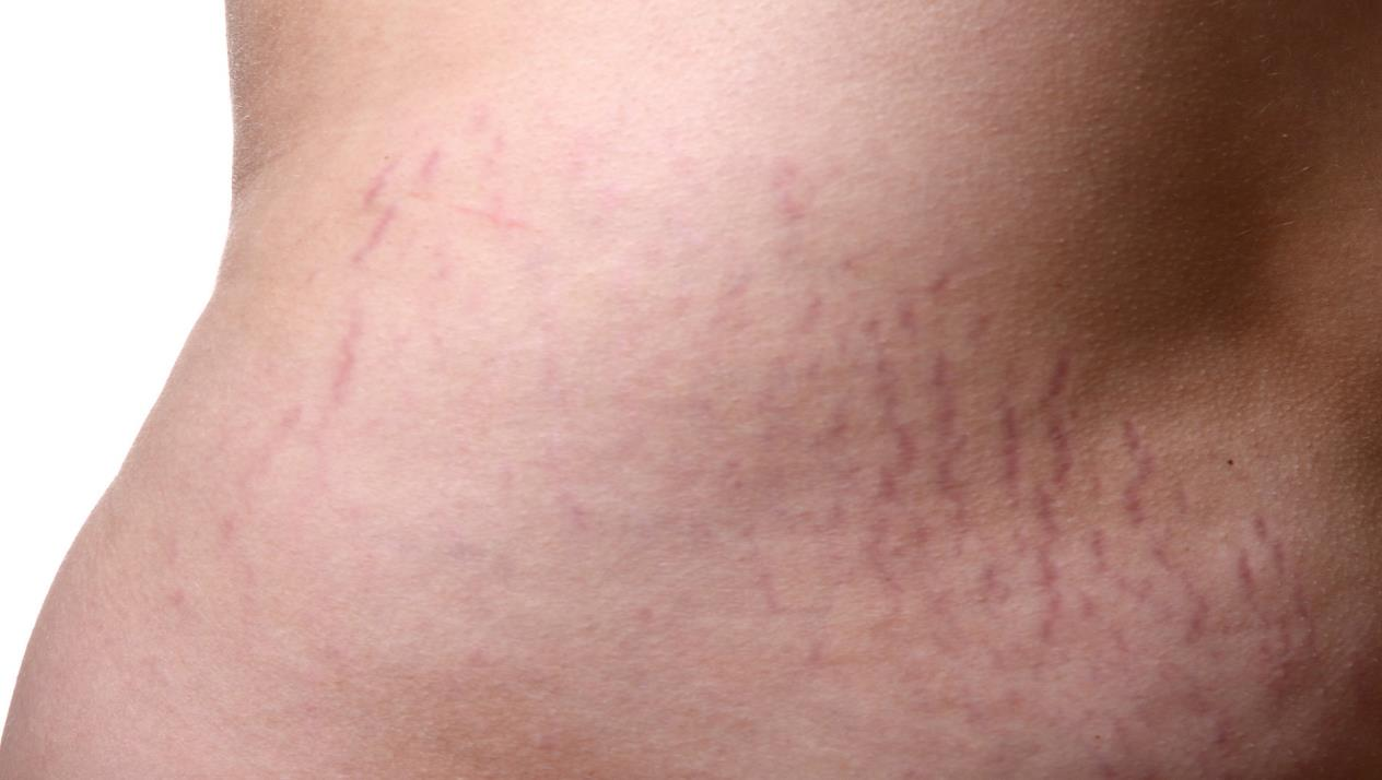 صورة علامات تمدد الجلد , السيلوليت او تمدد الجلد اسبابه واعراضه
