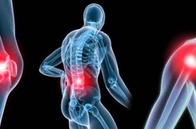 صورة علاج الروماتيزم بالحجامة , طرق علاج الروماتيزم