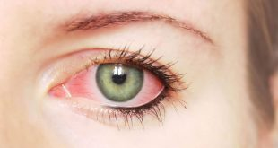 صورة علاج حساسية العين بالاعشاب الطبية , لا تعرض عينك للخطر و عالجها بالاعشاب