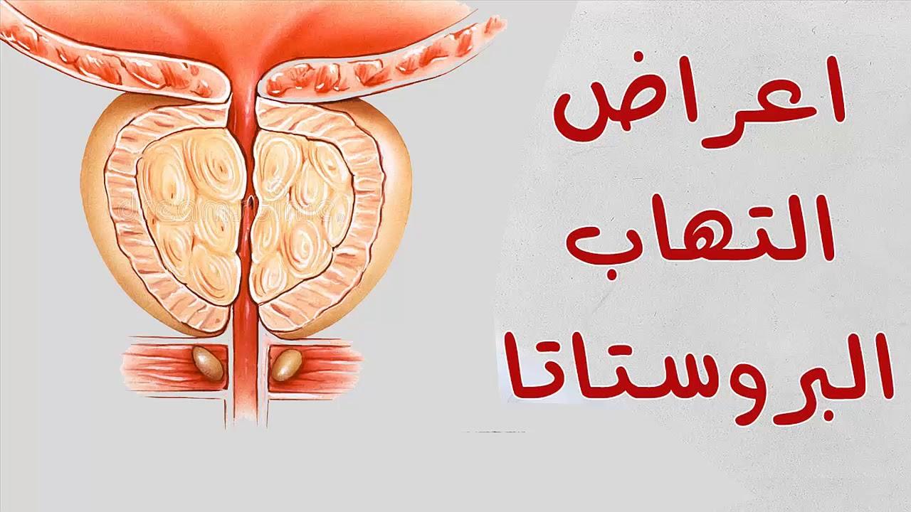 صورة اعراض التهاب البروستاتا المزمن , يؤلم كل الرجال